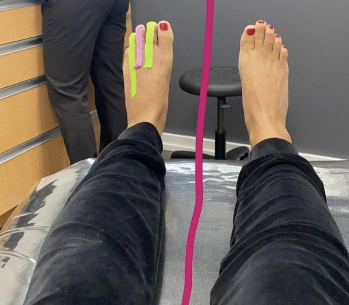 Are ugly feet on a woman a dealbreaker?