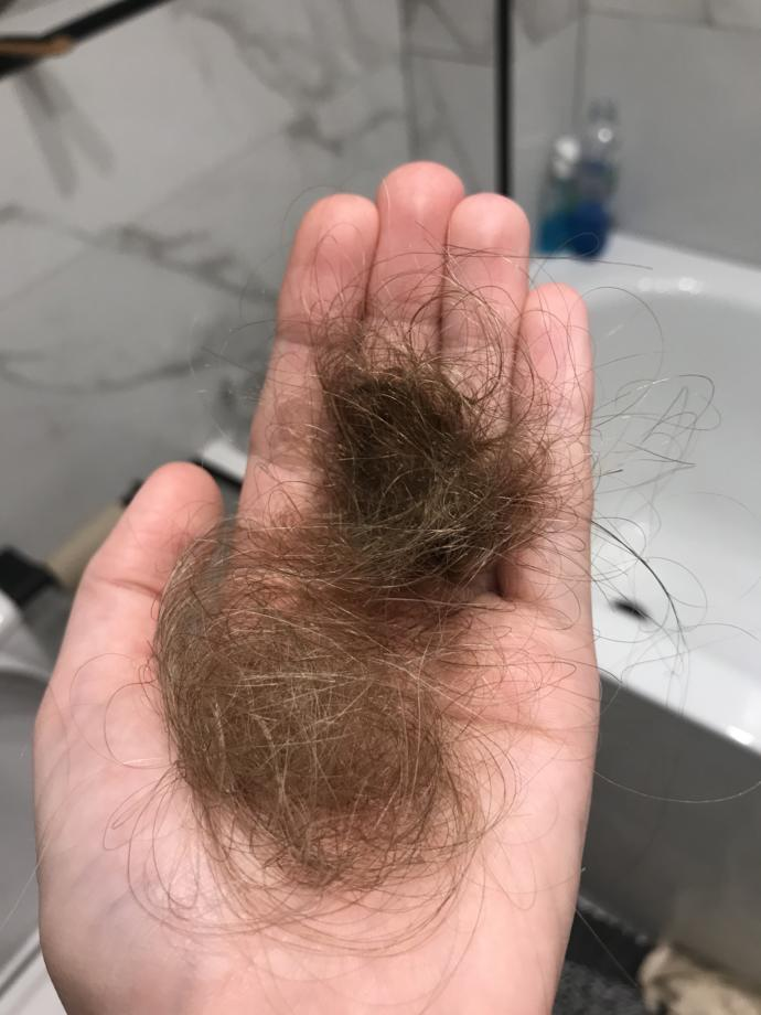 Is this a normal amount of hair to loose?