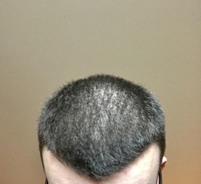 Am I going bald?