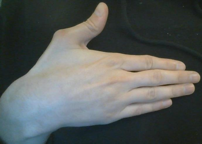 Does anyone know what is wrong with my thumbs?