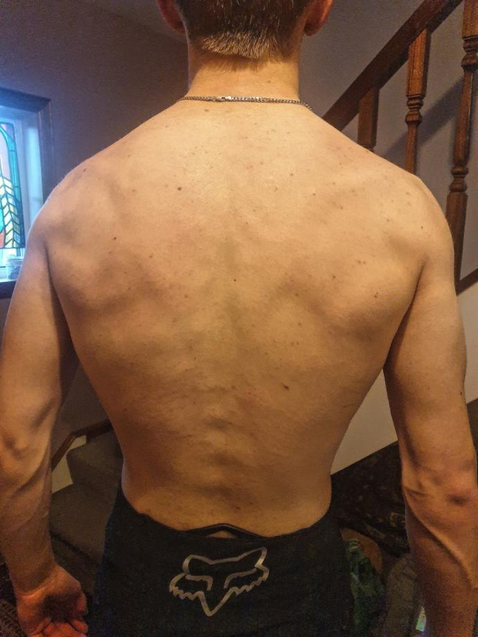 How to improve my back?
