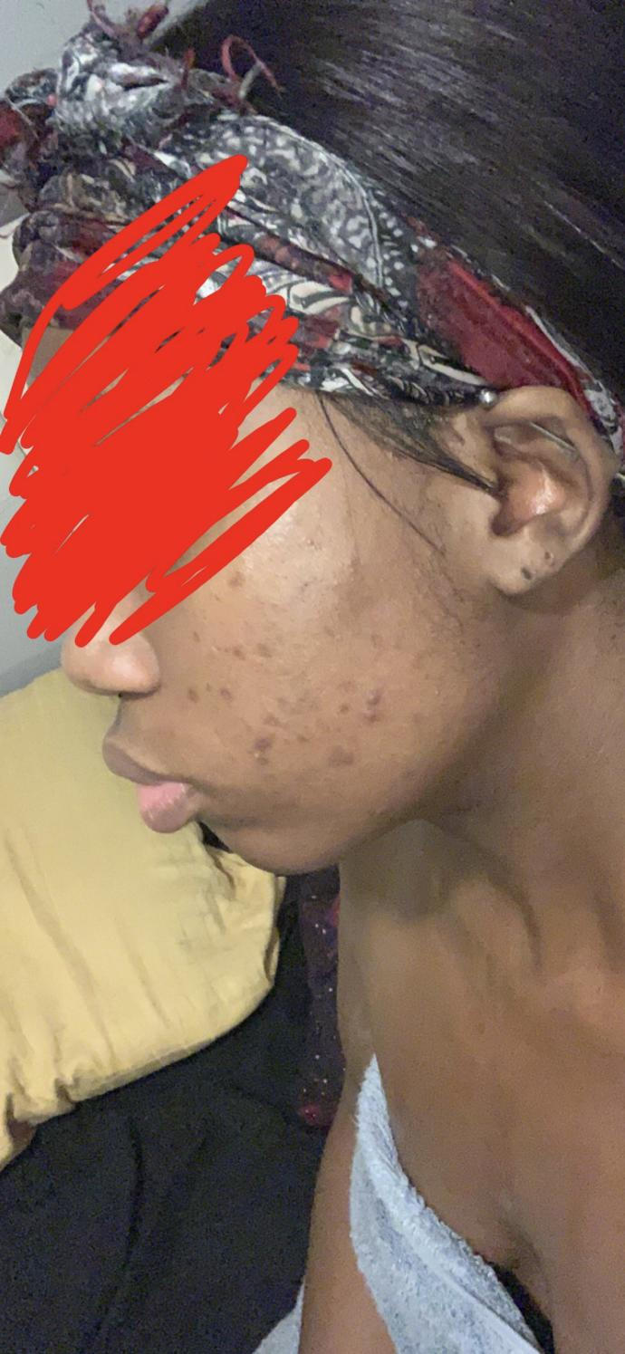 How do I clear this acne and scars?