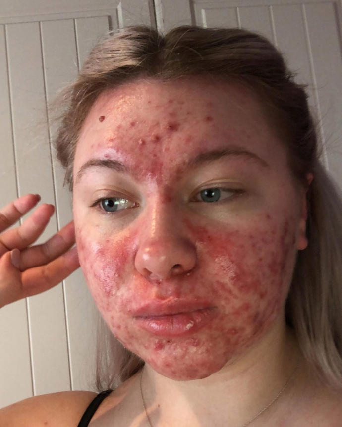Thats not me. luckily my skin is way better than this