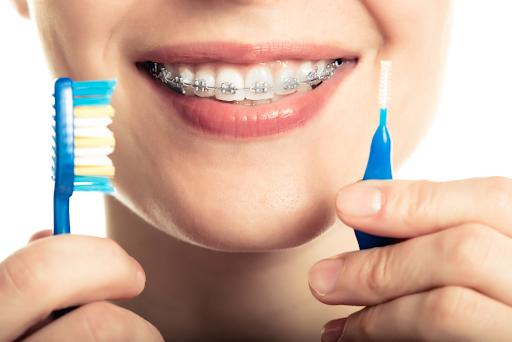 How Important Is It For Your Partner To Have Good Oral Hygiene/Teeth?