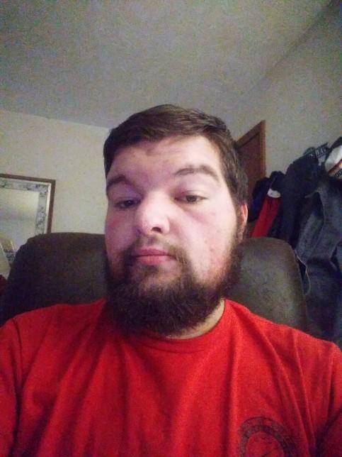 Anyone here tried on of the beard growth packs?