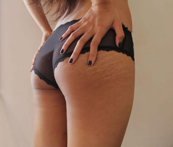 Are You Confident about Revealing/Showing Your Stretch Marks, Scars, Rolls, or Cellulite?
