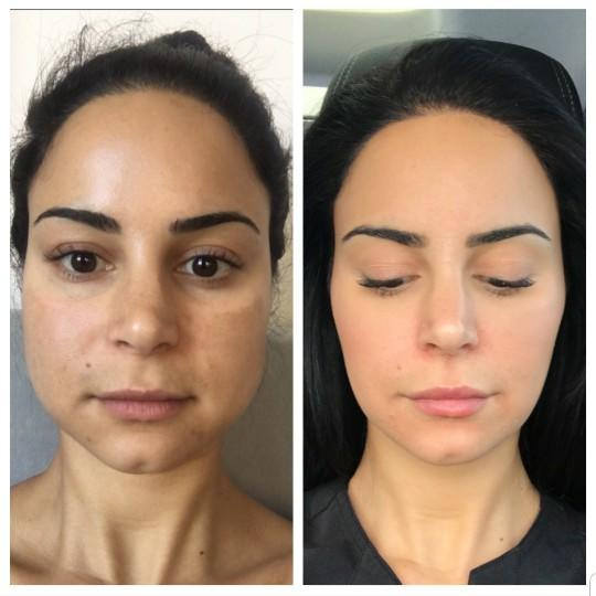 For anyone who has gotten masseter botox, how do you like your results? Any negative effects?
