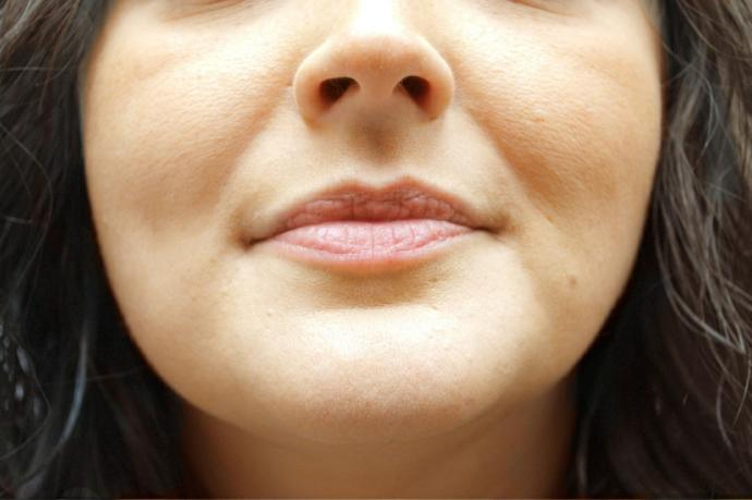 Guys, is it s turn off when a woman has visible smile lines?
