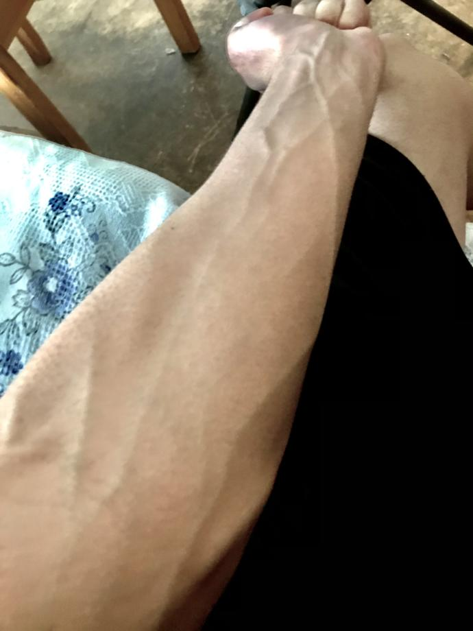 Are visible veins attractive, gross or nothing?