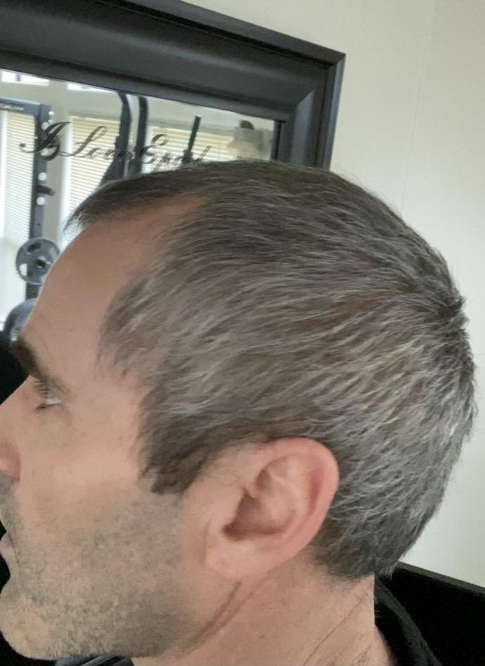 Which is best on me, bald spot and thinning hair or shaved (keep in mind the poll pic with hair has bald spot in back!)?