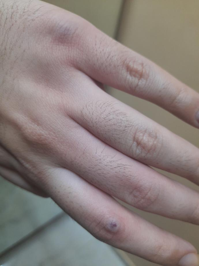 I injured my fingers by accidentally hitting a mirror very hard?