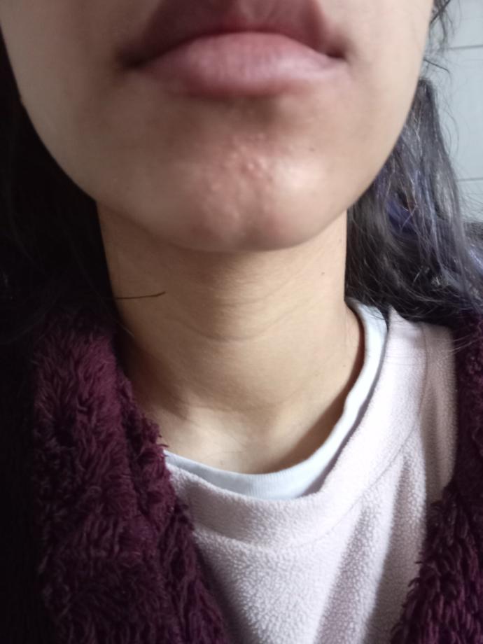 How can I get rid of these weird acne scars?