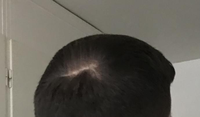 Is this a bald spot or a cowlick?