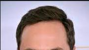 Most attractive hairstyle for big forehead/receding hairline?
