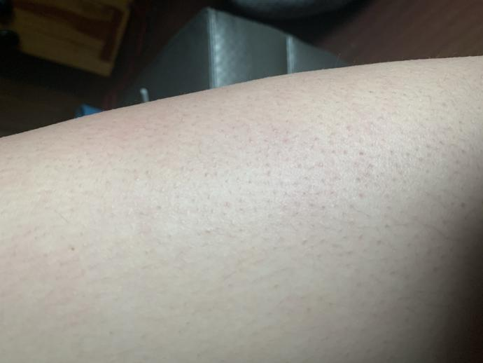 Does anyone know how to get rid of red bumps on my skin? or what they are? 😭?