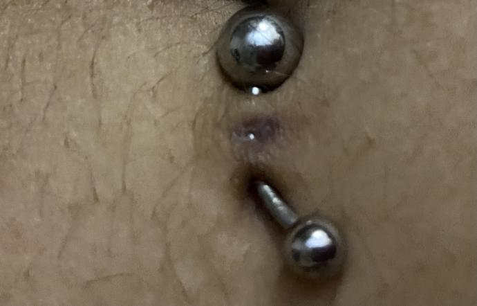 Why do I have a small whole in the middle of my belly piercing?