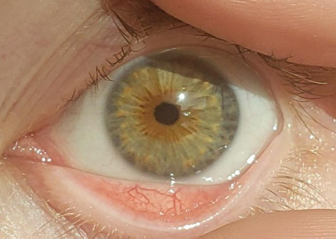 How does an optometrist determine eye color?