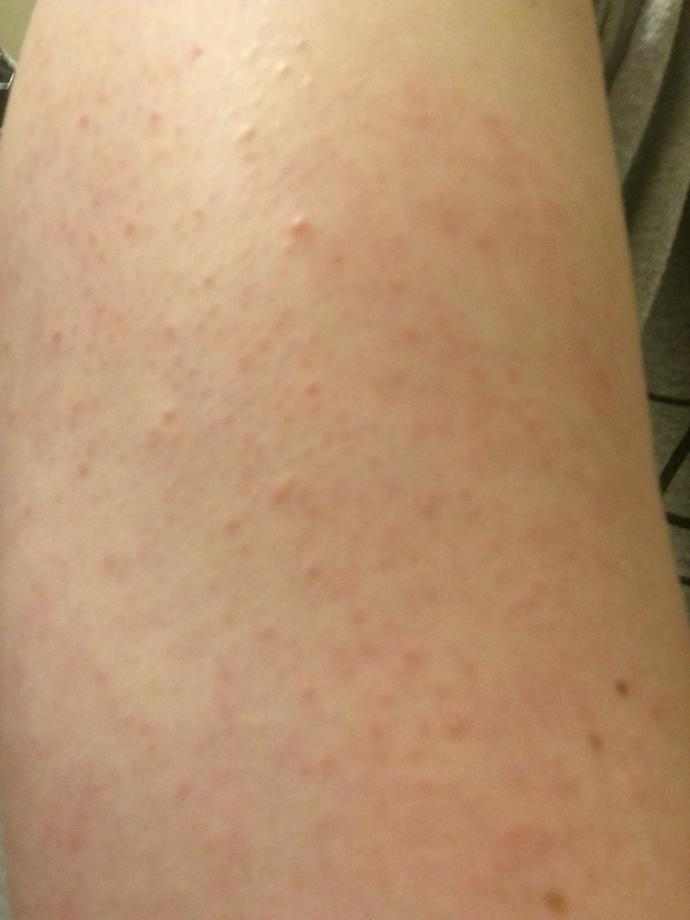 Guys, is it a turn off for a girl to have keratosis pilaris (chicken skin)?