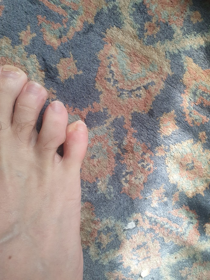 Whats wrong with my toe 🤔🤔🤔?