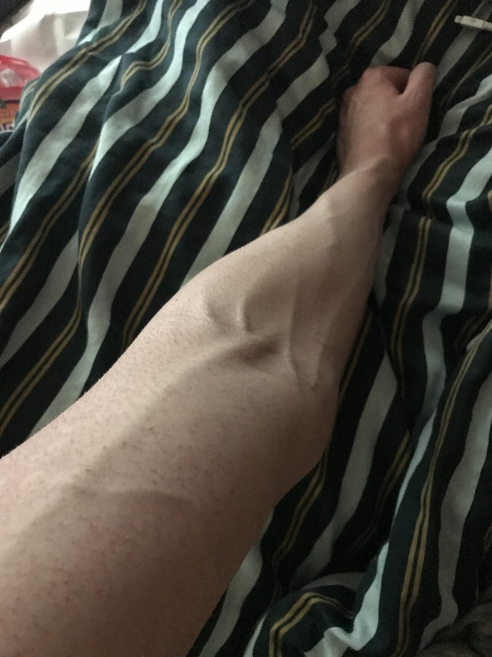 Are visible veins sexy?