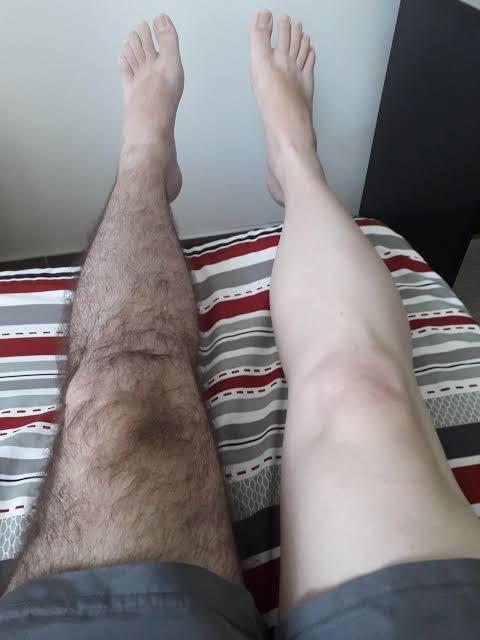 Shaved legs on men?