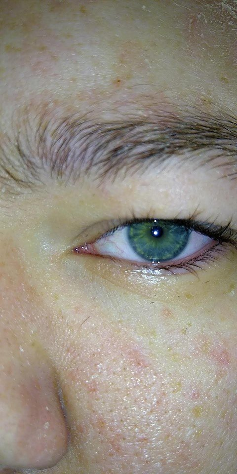 Is it normal for someone with blue or green eyes to alternate colors or have both at once?