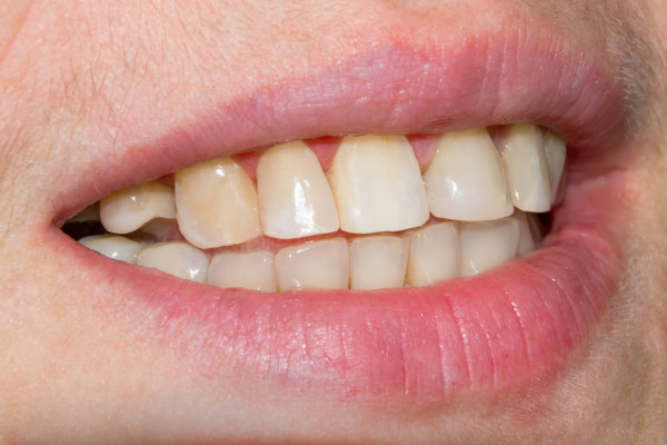 just an idea of the teeth I have in mind