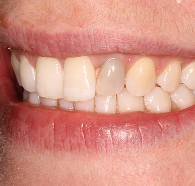"""Guys, are teeth like these (or slightly """"worse"""") a dealbreaker in dating?"""