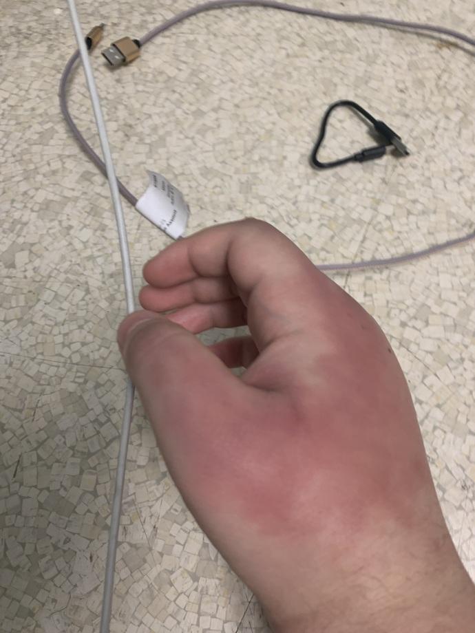 Broken knucles?
