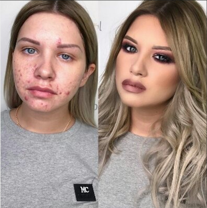 How many females have acne like this under all that fakeup?