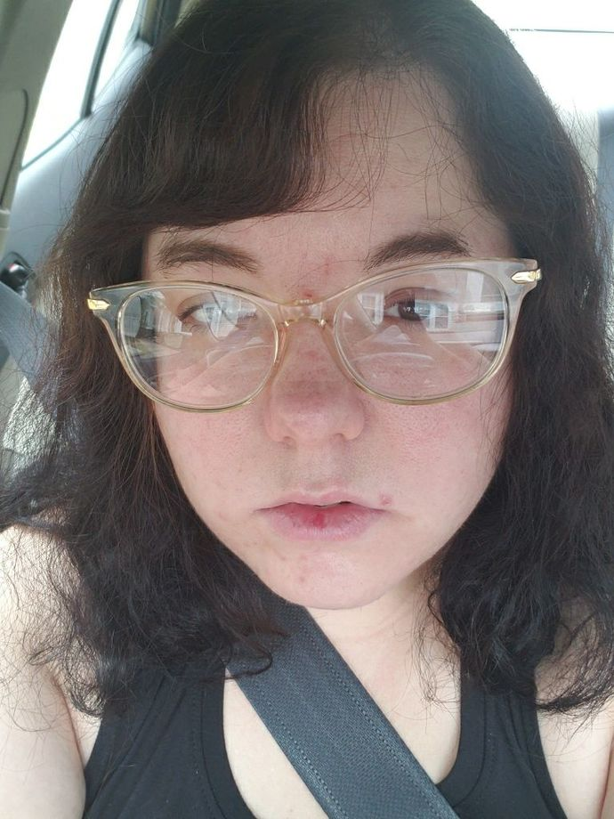 Is my face a turn off for sex?